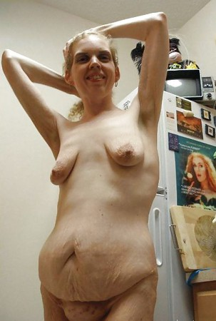 Pics Of Ugly Naked Women